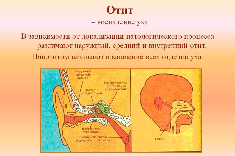 Отит лечение,симптомы,причины,виды отита
