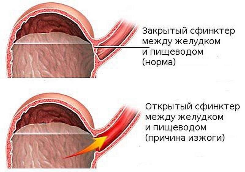 Изжога. причины, болезни при которых появляется изжога, современное лечение, изжога при беременности :: polismed.com