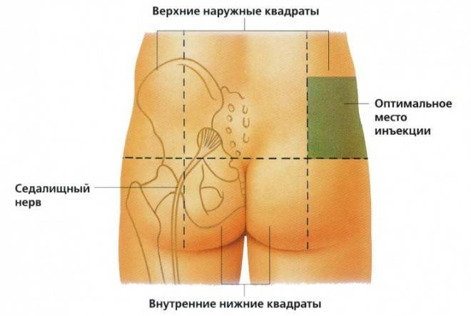 Глюконат кальция применение в гинекологии уколы