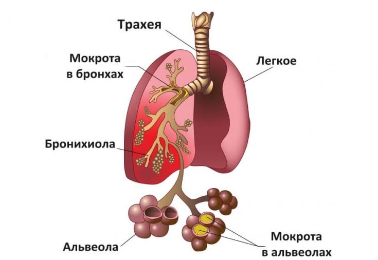 Как можно определить воспаление легких?
