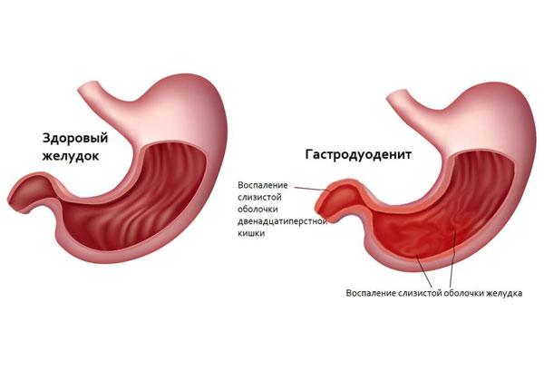 Правила питания при гастродуодените, диета и меню