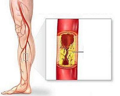 Причины, симптомы, диагностика и лечение эндартериита