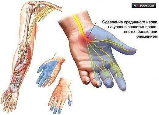 Немеющие пальцы рук: объяснение феномена, виды лечения