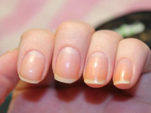 5 видов депигментации кожи