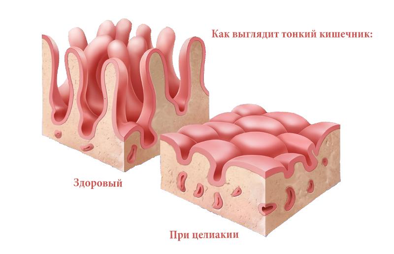 Что такое глютеновая энтеропатия: особенности, симптомы, лечение?