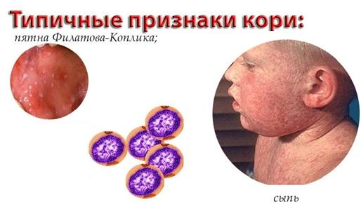 Корь: симптомы и лечение у детей