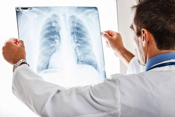 Подробно о том, чем отличается бронхит от астмы