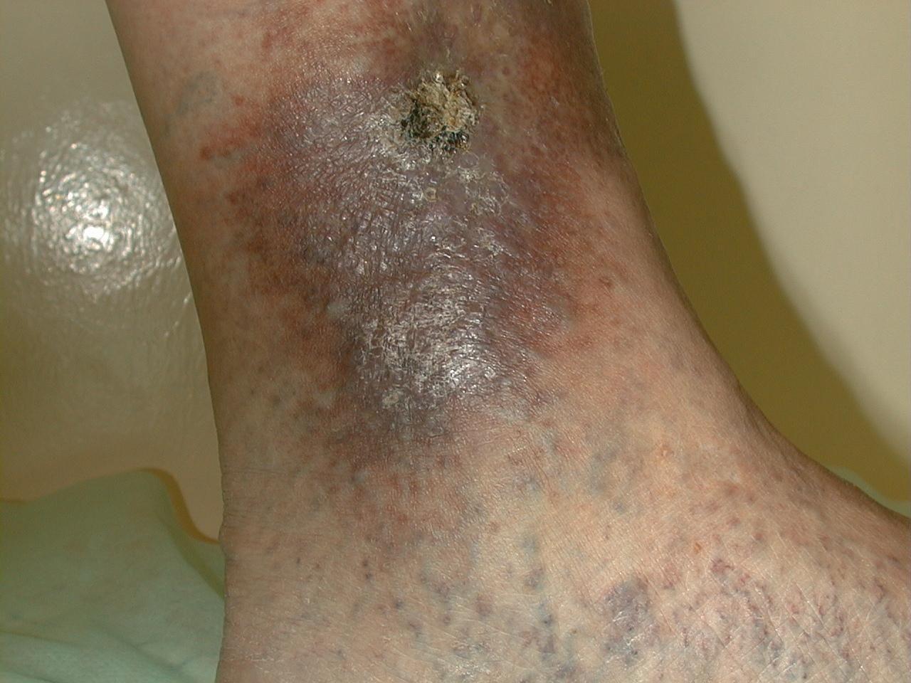 Быстрое и эффективное лечение трофической язвы на ноге