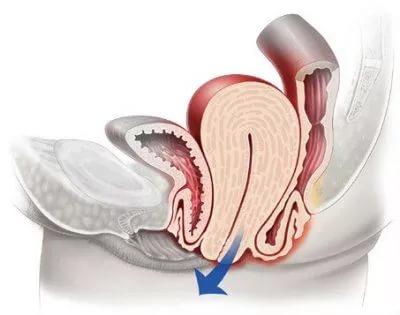 Выпадение женских половых органов
