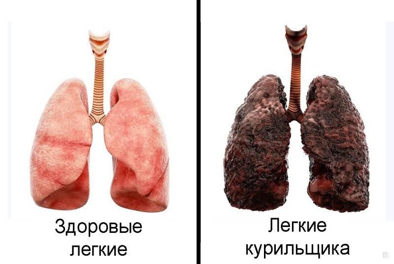 Заболевания дыхательной системы: можно ли курить при пневмонии?