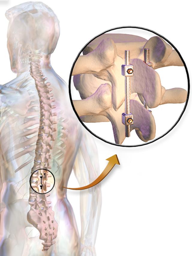 Эффективность оперативного лечения грыжи межпозвоночного диска