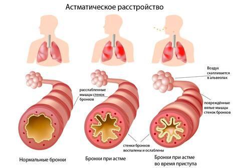 Причины бронхиальной астмы и механизмы ее развития