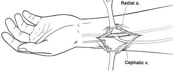 Дуральные артериовенозные фистулы - лечение в германии