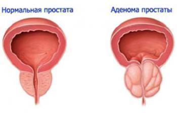 Лечение аденомы простаты препаратом омник – как правильно принимать таблетки?
