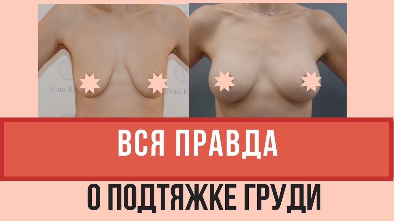Пластика грудных желез. показания, как проводится операция с имплантами и без, результаты, фото, последствия