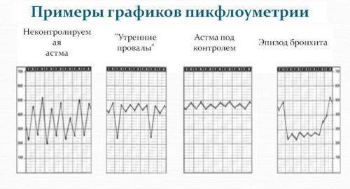 Пикфлоуметрия – показатели, результаты, норма, проведение диагностики