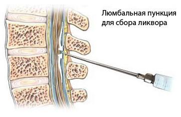 Что это такое ликвор? лечение спинномозговой жидкости