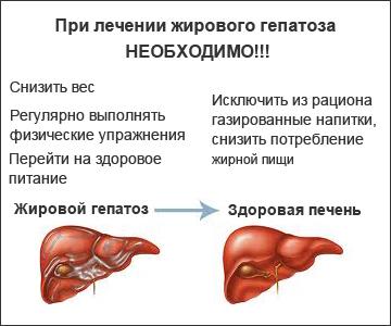 Диета при гепатозе печени - что можно и что нельзя есть при жировом гепатозе печени?