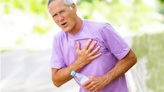 Атеросклеротический кардиосклероз причины
