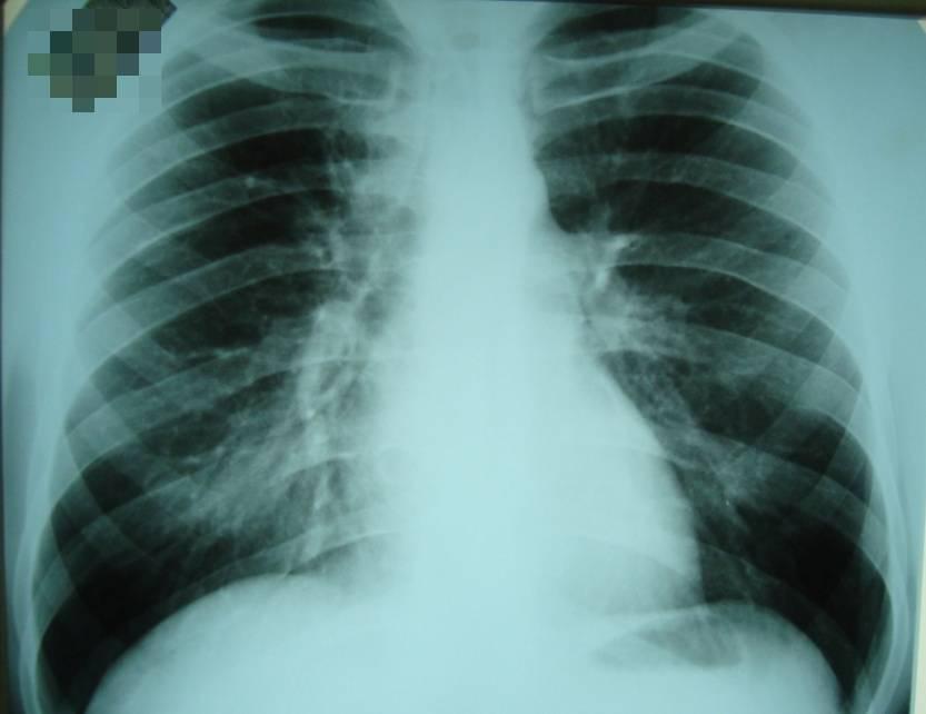 Влияние туберкулеза на беременность