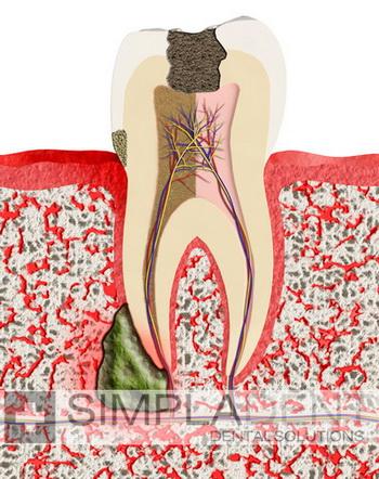 Гранулема зуба: симптомы и лечение болезни