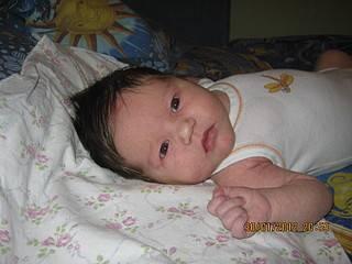 Прививка бцж загноилась... - загноилась прививка бцж - запись пользователя татьяна (silantyeva) в дневнике - babyblog.ru