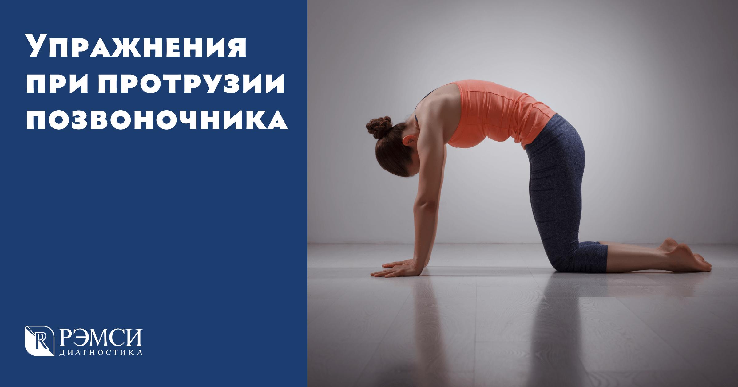 Гимнастика при смещении позвонков поясничного отдела видео | советы доктора