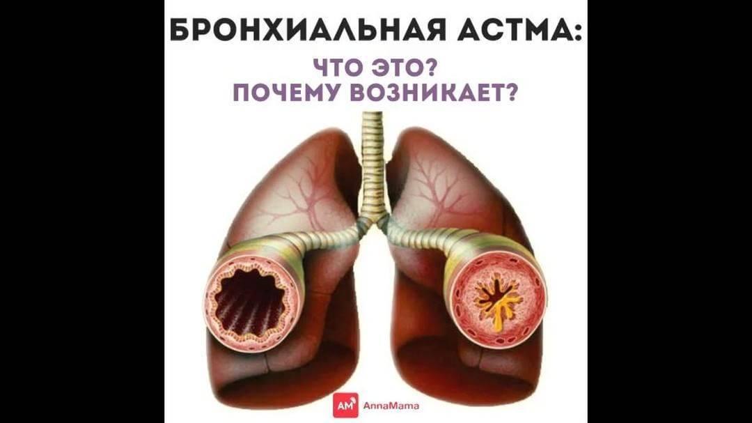 Прогнозы при бронхиальной астме: к чему может привести болезнь