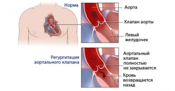 Митральная и трикуспидальная регургитация 1 степени