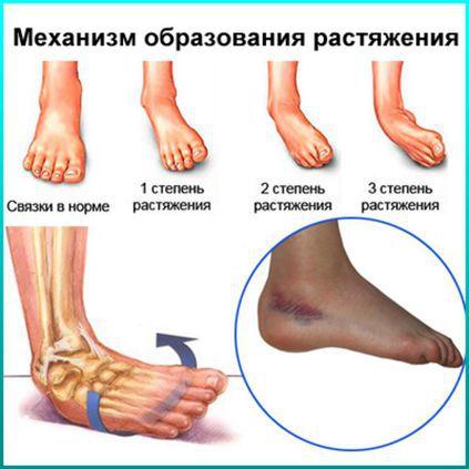 Растяжение связок коленного сустава — лечение, причины и симптомы