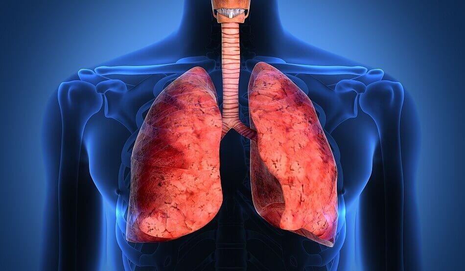 Пневмосклероз легких – симптомы, лечение, базальный пневмосклероз