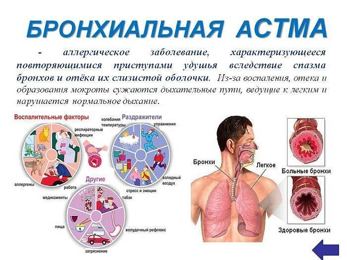 Первичная и вторичная профилактика бронхиальной астмы