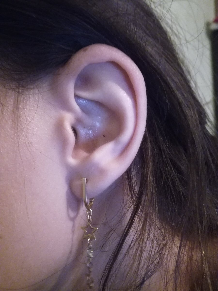 Болят мочки ушей — стоит ли придавать этому зачение? почему может болеть мочка уха, к какому врачу обращаться и как это лечится