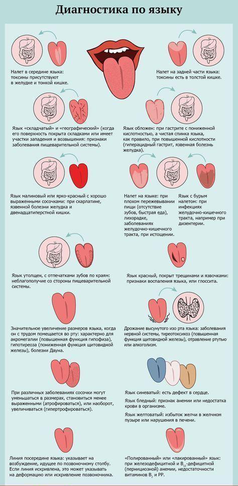 Дизентерия – симптомы у детей, признаки дизентерии у ребенка и лечение дизентерии у детей. возбудитель дизентерии, инкубационный период
