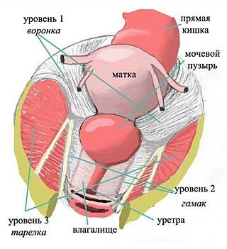Пролапс тазовых органов у женщин: ой, что-то упало