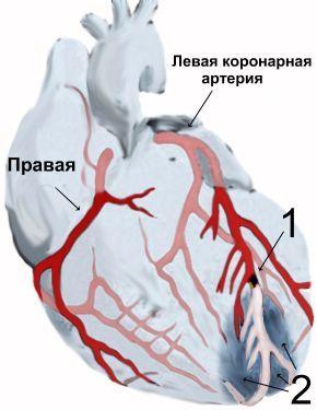 Смерть от инфаркта – типы, симптомы, признаки
