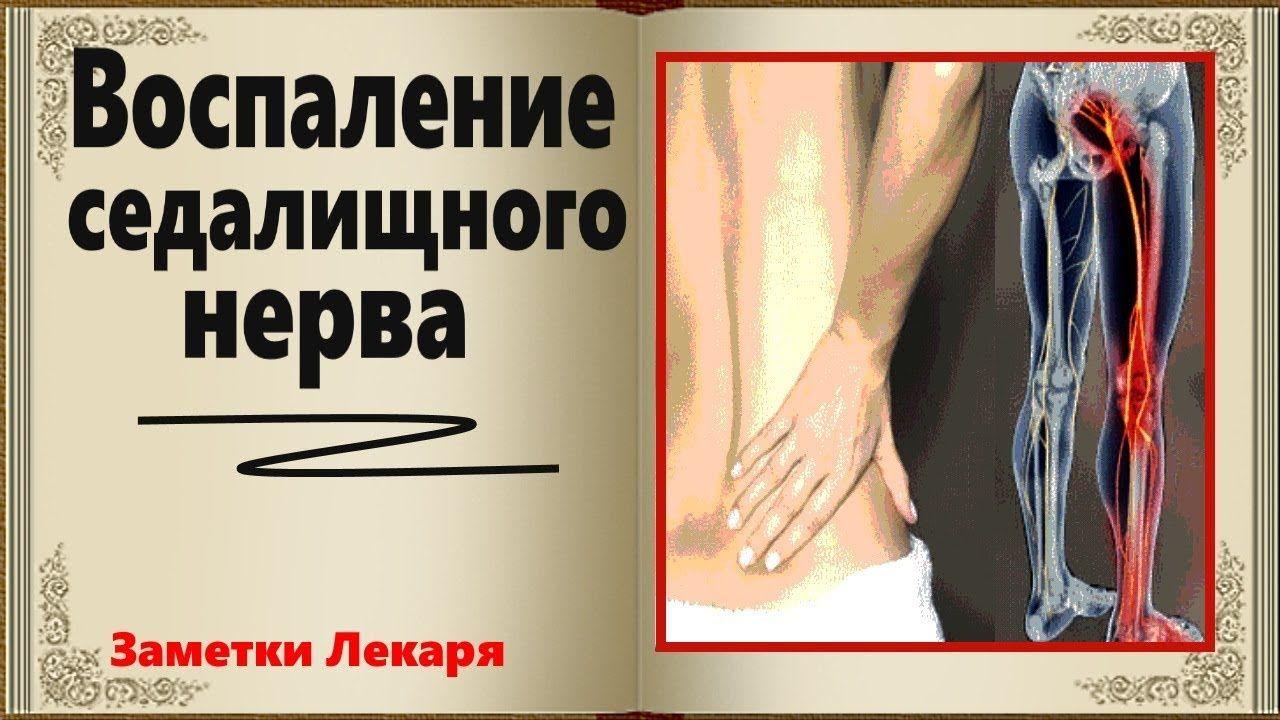 Лечение седалищного нерва в домашних условиях - варианты лечения