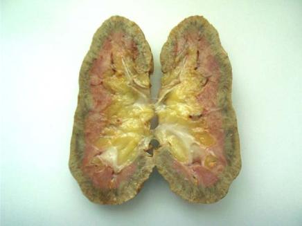 Нефросклероз. причины, симптомы, признаки, диагностика и лечение патологии. :: polismed.com