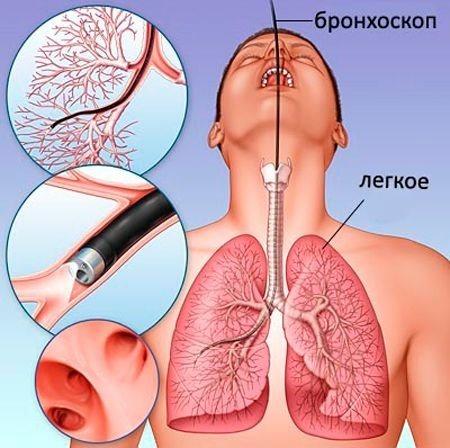 Очаговый фиброз: симптомы и способы лечения