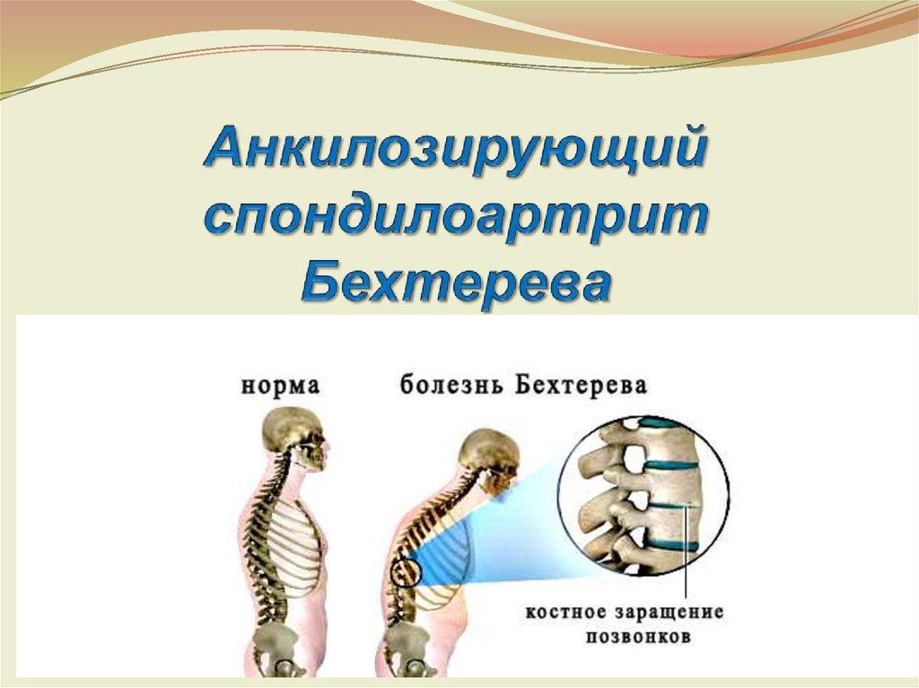 Болезнь бехтерева (анкилозирующий спондилит): симптомы, лечение