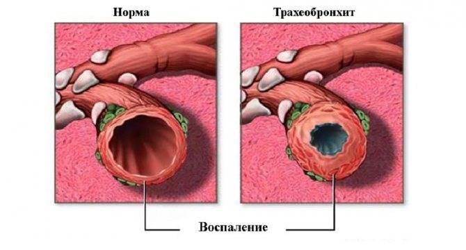 Чем опасны трахеит и бронхит — какие симптомы у болезней и чем их лечить