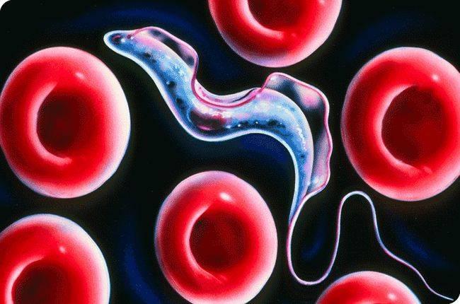 Человеческий африканский трипаносомоз (сонная болезнь)