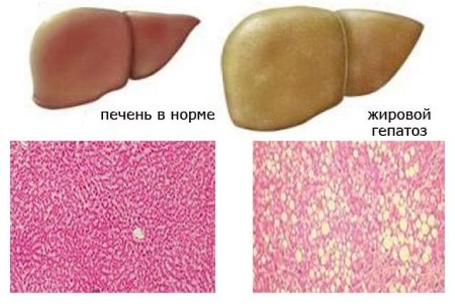 Жировой гепатоз печени причины диета
