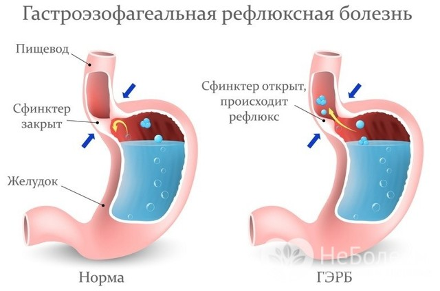 Болезни пищевода — трудно глотать и жжёт за грудиной