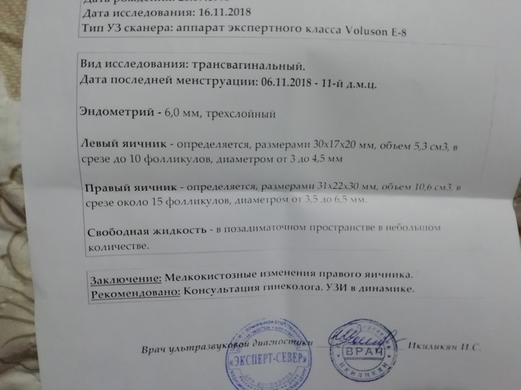 Cтимуляция одним менопуром - менопур отзывы и результаты - запись пользователя adele (id2105431) в сообществе эко - мама в категории протоколы эко (все о них, все об этом периоде+гиперстимуляция) - babyblog.ru