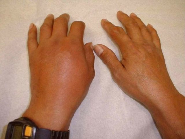 Диета при артрите суставов: сбалансированное питание, примеры меню