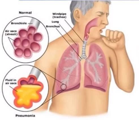 Прививка от пневмонии детям: вакцины, реакция