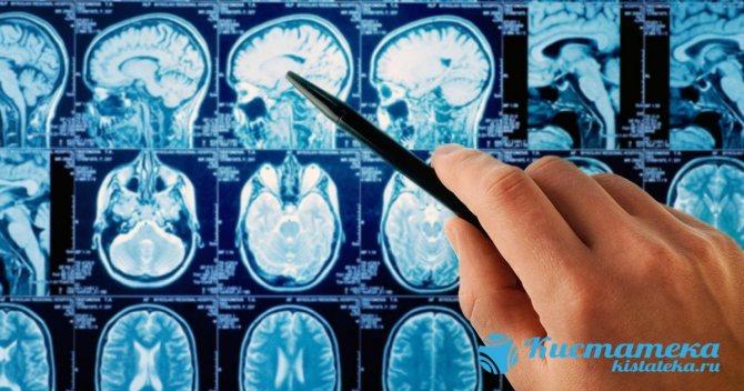 Симптомы арахноидальной кисты головного мозга