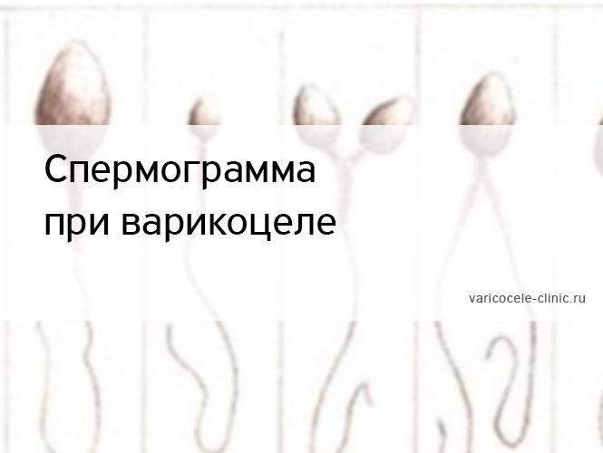 Может ли варикоцеле стать причиной бесплодия