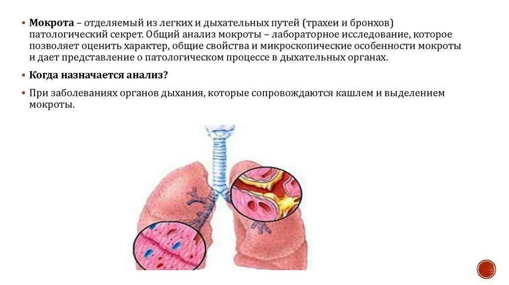 Мокрота при туберкулезе: цвет, состав, консистенция, заразна ли?